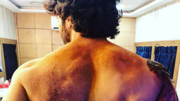 GUESS WHO? This actor gets BRUISED during battle sequence shoot