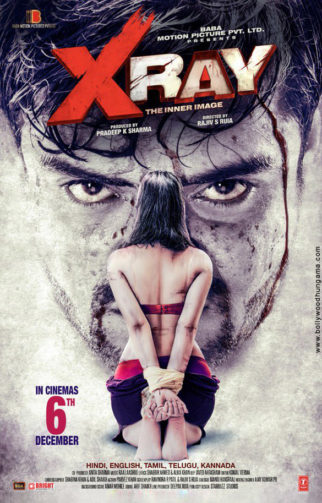 First Look Of X Ray - The Inner Image