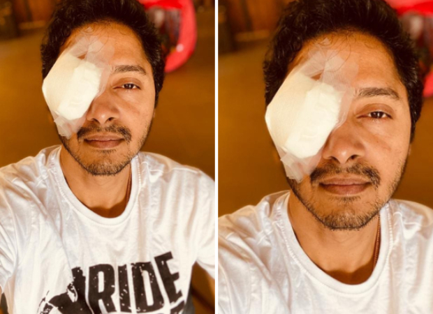 Shreyas Talpade injures his eye during lockdown, gives an update on his condition